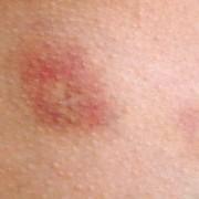 sintomi-della-dermatite-atopica